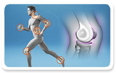 What Are the Benefits of Chondroitin Glucosamine MSM
